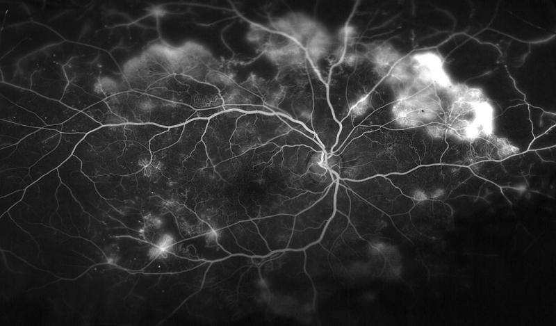 Study suggests new way of preventing diabetes-associated blindness