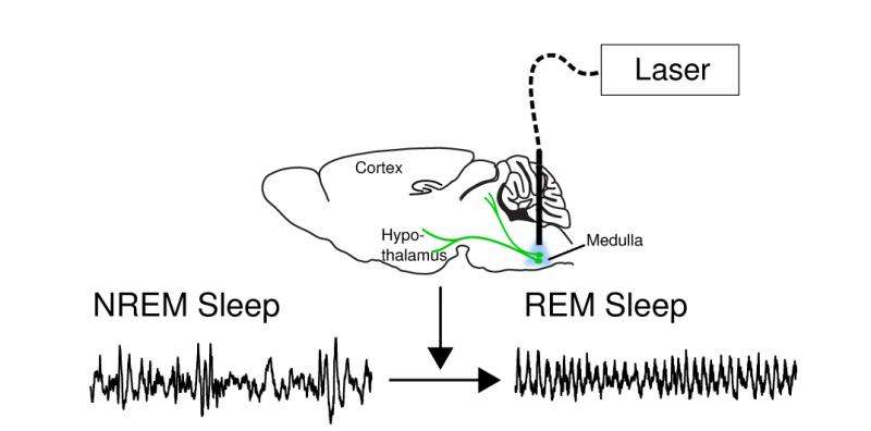 Researchers find neural switch that turns dreams on and off