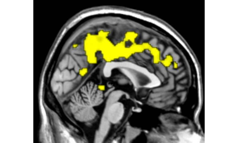 """A """"fuzzy"""" method for  interpreting fMRI recordings"""