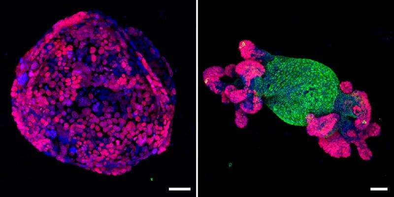 A single gene turns colorectal cancer cells back into normal tissue in mice