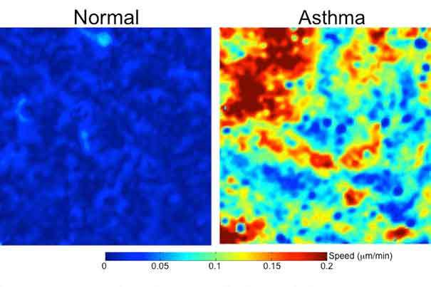 Asthma cells scramble like 'there's a fire drill'