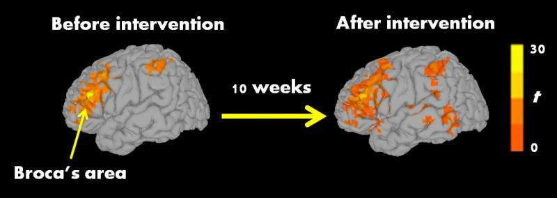 Where Autism Got Right Treatment In 2015 >> Autistic Children Improved Reading And Brain Activity After 10 Week