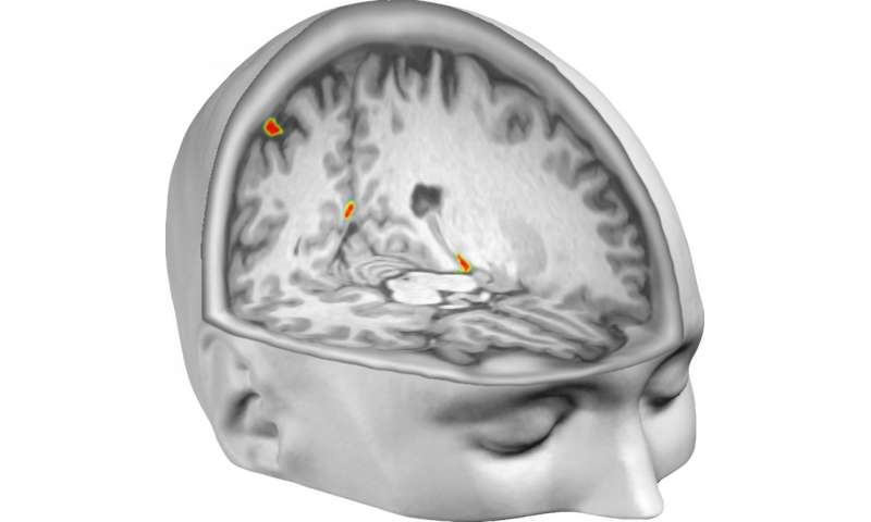 Brain scan reveals out-of-body illusion