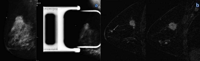 Breast MRI after mammography may identify additional aggressive cancers