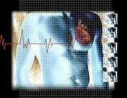 CHADS<sub>2</sub> best predictor of postoperative mortality risk