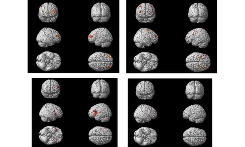 Changing activity in the ageing brain