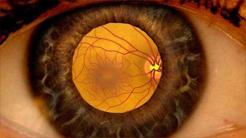 Eylea outperforms other drugs for diabetic macular edema with moderate vision loss