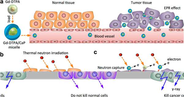 Gadolinium-based particles show and treat tumours