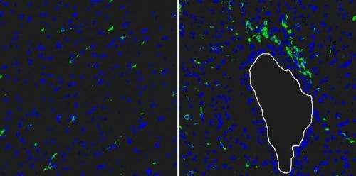 Gene regulates healing process after myocardial infarction