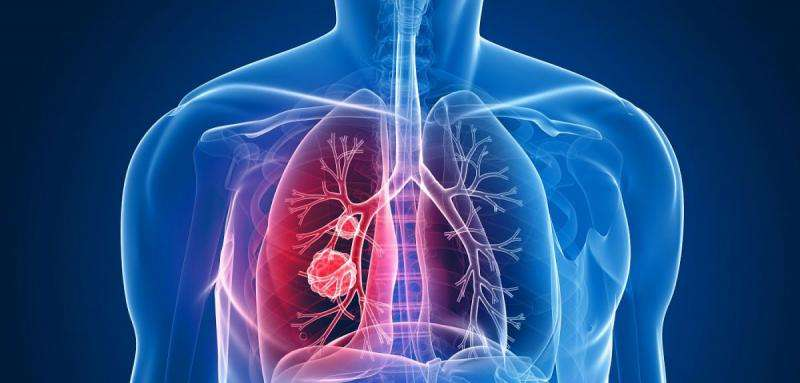 Genetic expression 'predicts lung cancer survival'