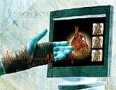 Heart valve repair surgery may ease mental health symptoms, too