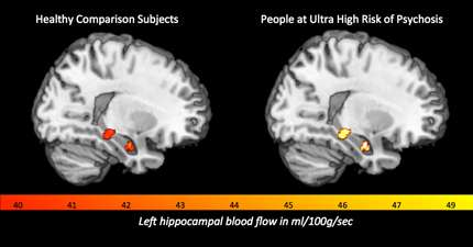 Heightened blood flow in the brain linked to development of psychosis