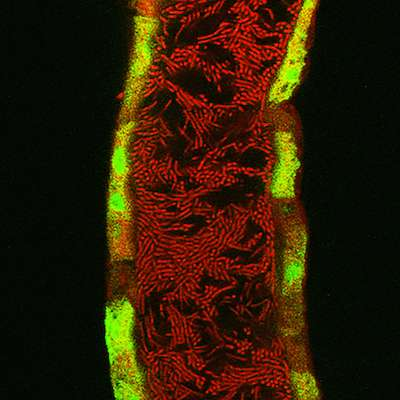 How beneficial bacteria protect intestinal cells