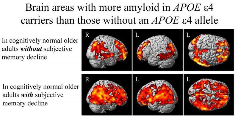 Impact of major Alzheimer's-related gene may be felt years before any symptoms appear