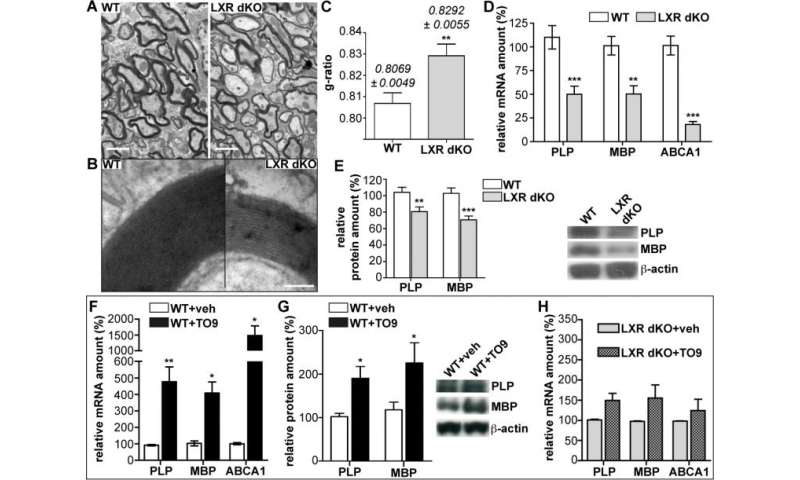Invalidation or activation of LXRs alters myelin structure and myelin gene expression in the cerebellum
