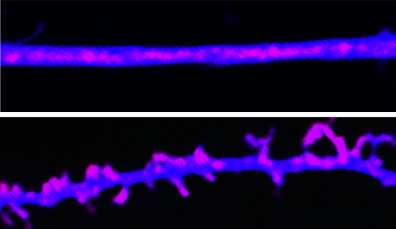 Long-term memories are maintained by prion-like proteins