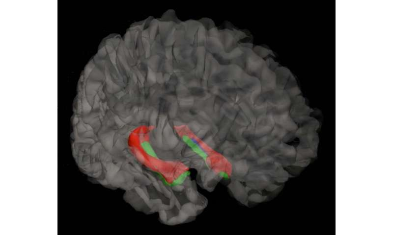 Micro-map of hippocampus lends big hand to brain research