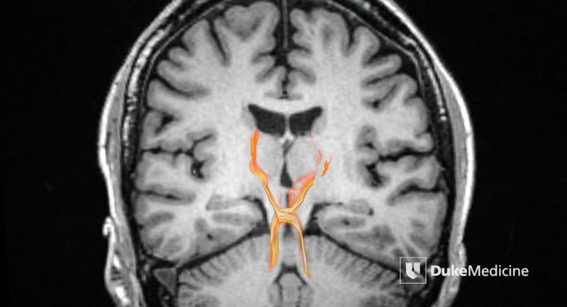 MRI technology reveals deep brain pathways in unprecedented detail