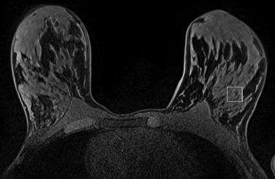 MR spectroscopy shows precancerous breast changes in women with BRCA gene