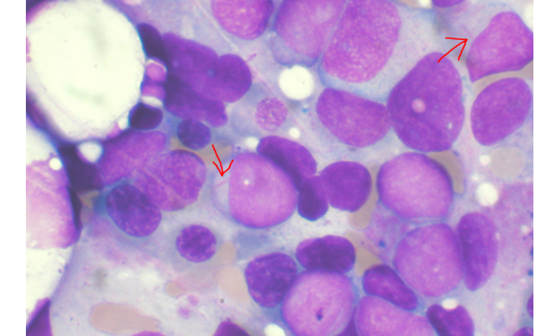myeloid leukemia