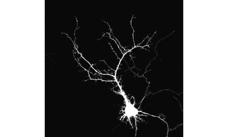 neuron, dendrite