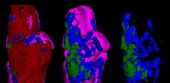 New research allows doctors to image dangerous 'hardening' of the arteries