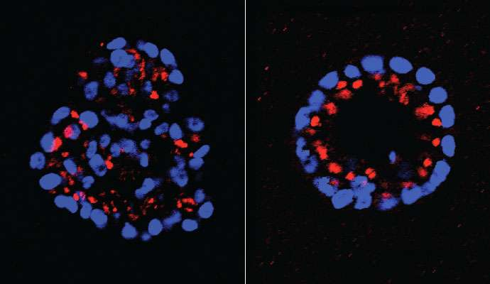 New signaling pathway discovered in HER2-positive breast cancer, and 2 powerful drug targets