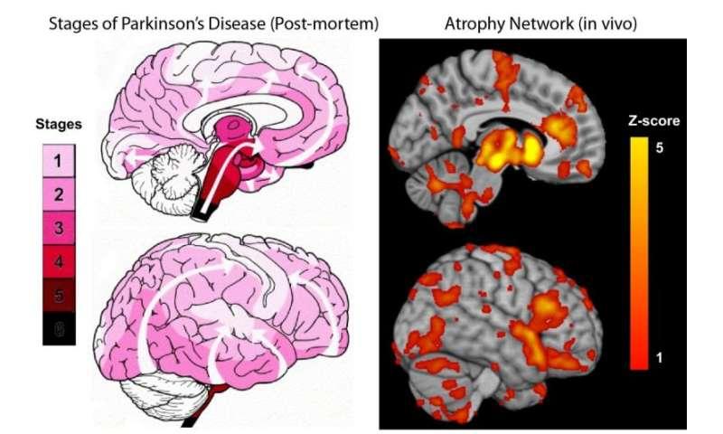 Parkinsons Disease Progression >> New Study Maps The Progression Of Parkinson S Disease Within The Brain