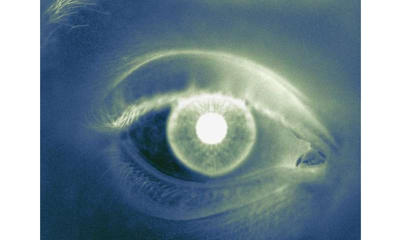 Patient age at initial cataract surgery varies by location