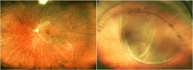 Preserving photoreceptor cells following retinal injury