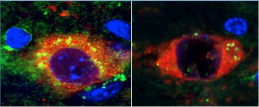 Rapamycin prevents Parkinson's in mouse model of incurable neurodegenerative disease