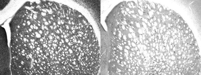 Rare neurons enable mental flexibility