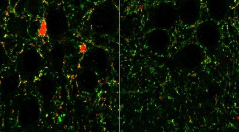 Receptors in brain linked to schizophrenia, autism