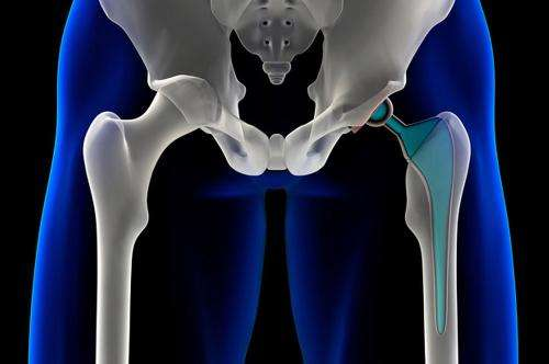 Scientist look for nanostructures that allow compatibility between metal and human bone tissues