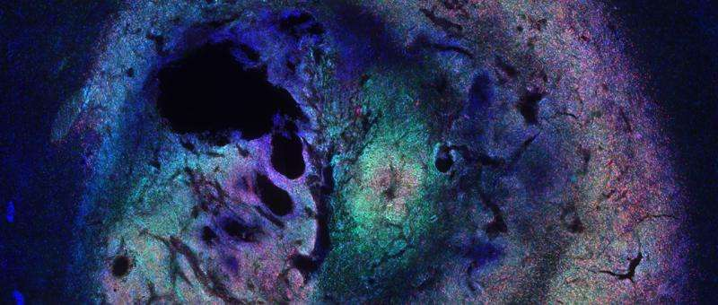 Signaling pathway suppresses brain tumors