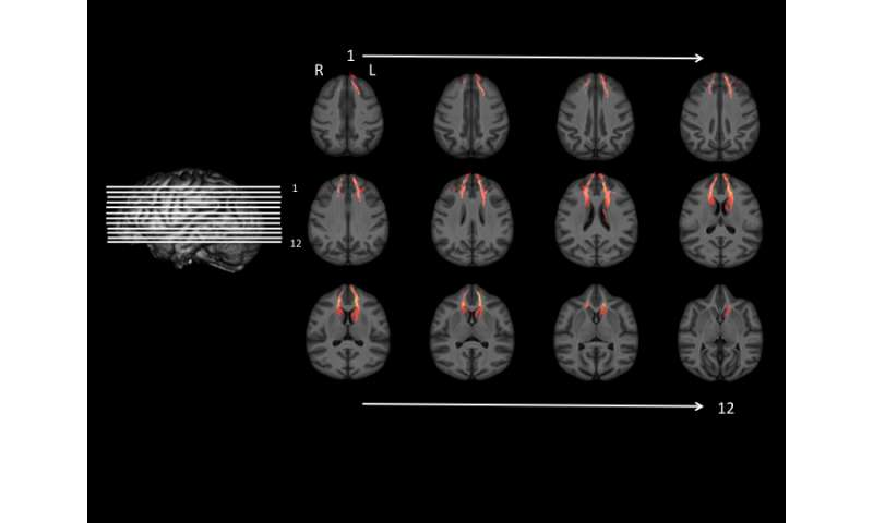 Study links delay of gratification to how brain structures are connected