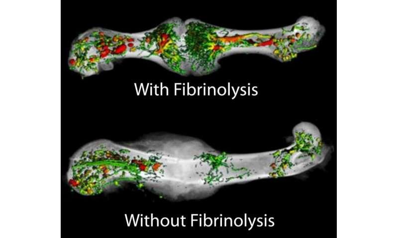 Study shifts understanding of how bone fractures heal