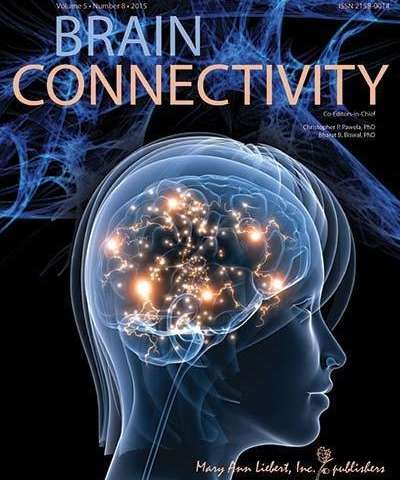 Study shows chronic fatigue associated with abnormal brain connectivity at rest