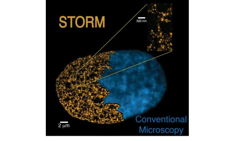 Super-resolution microscopes reveal the link between genome packaging & cell pluripotency