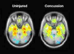 Testing of oculomotor nerve function may aid in concussion diagnosis