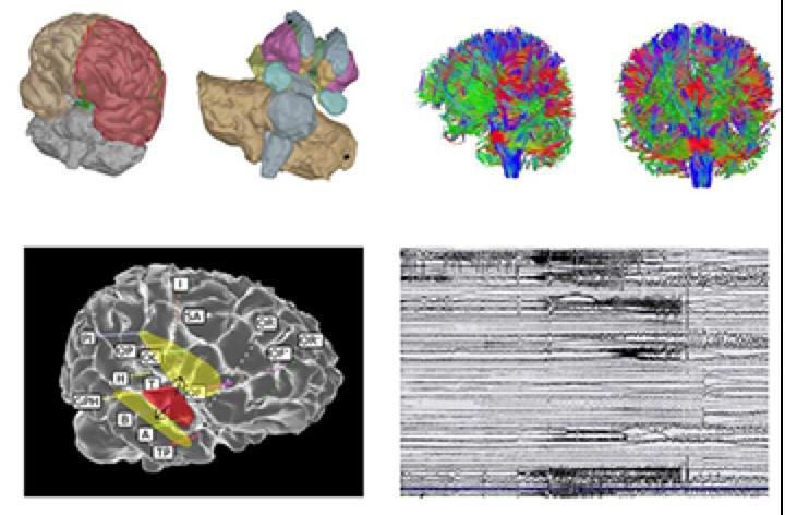 A virtual brain helps decrypt epilepsy