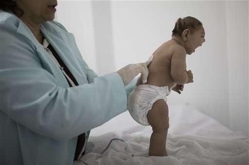 Brazil's Zika-related abortion debate sparks backlash