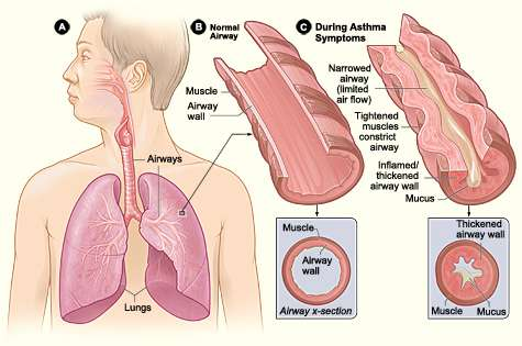 Dexamethasone for asthma in the ER: Better compliance, nearly equal effectiveness