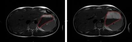 Just add water? New MRI technique shows what drinking water does to your appetite, stomach and brain