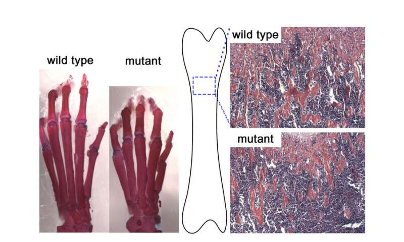 Key regulator of bone development identified