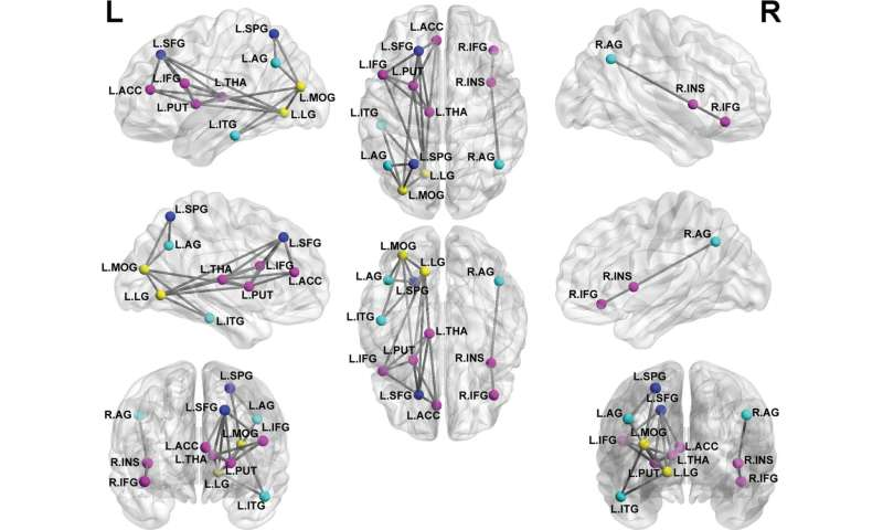 MRI shows brain disruption in children with PTSD