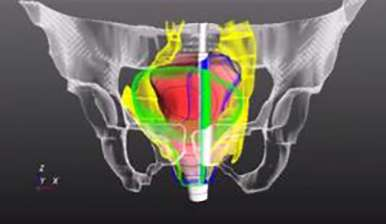 Pelvic nerves made visible: reduced risk in surgery