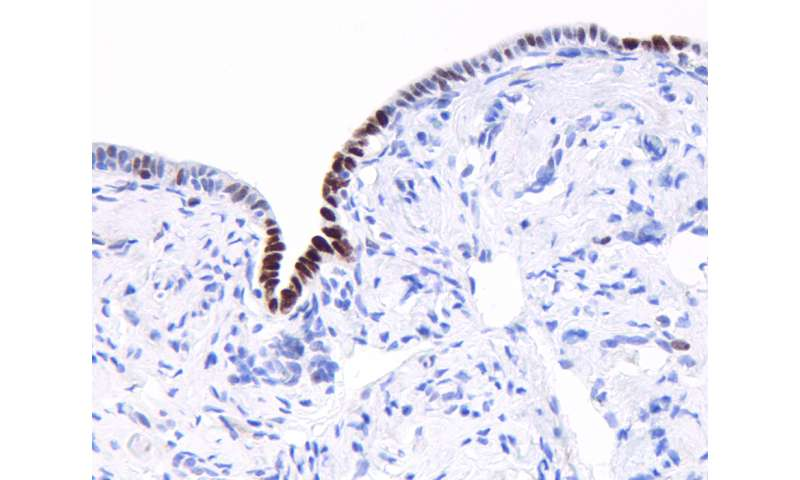 Prevalent cancer-associated mutations detected in apparently healthy group