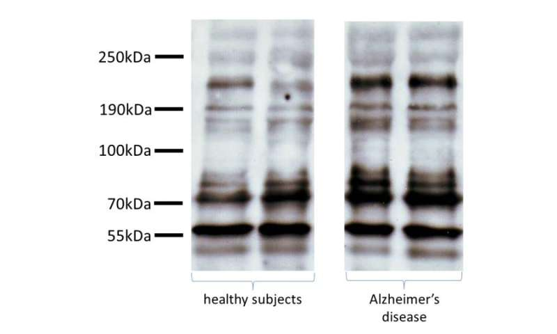 Promising discovery for a non-invasive early detection of Alzheimer's disease