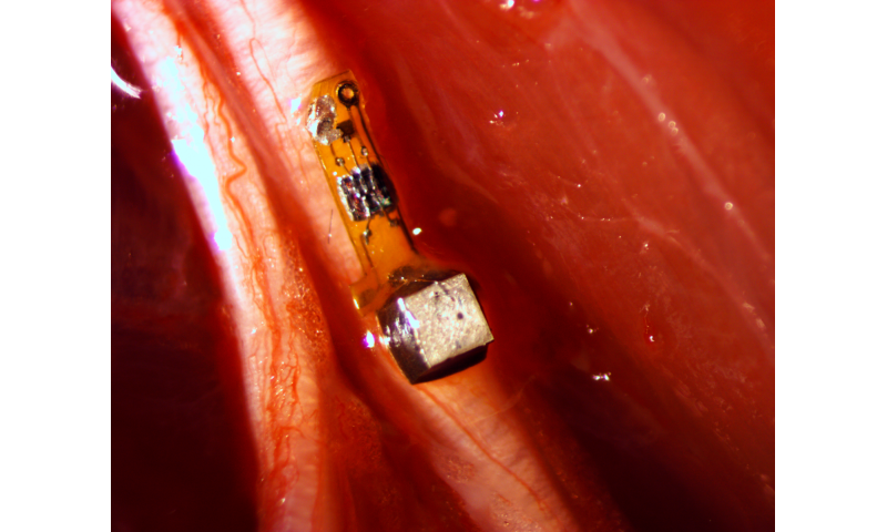 Sprinkling of neural dust opens door to electroceuticals